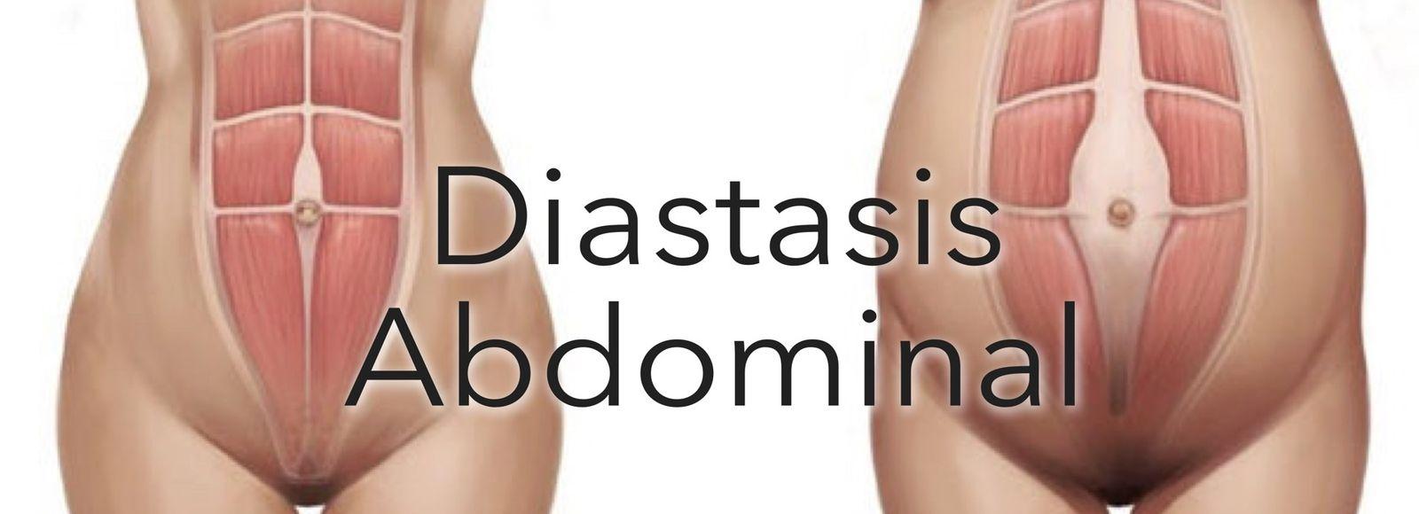 Diástasis abdominal después del embarazo.